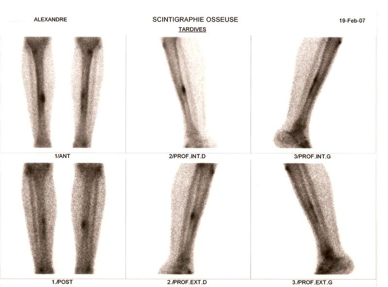 Douleur interieur genou course a pied 100 images mal for Douleur exterieur genou